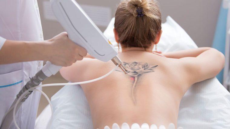 Laser Para Remoção de Tatuagens